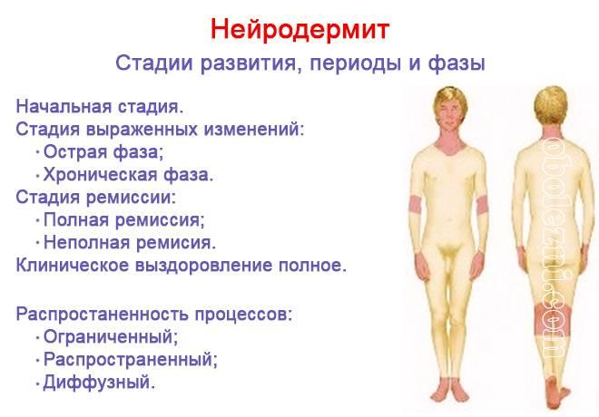 Дерматит: причины, симптомы и лечение у взрослых