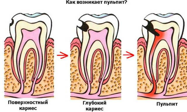 Начинаю цикл ответов на стоматологические вопросы! тема №1. кариес ранее леченного зуба.