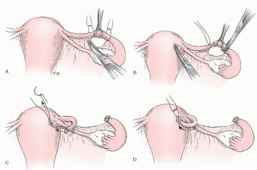 Перевязка маточных труб: суть процедуры, показания, проведение, результат