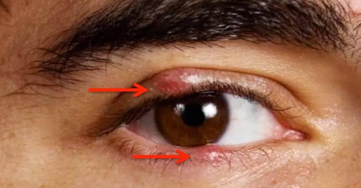 Гель для глаз – противовоспалительный, гормональный глазной антисептик