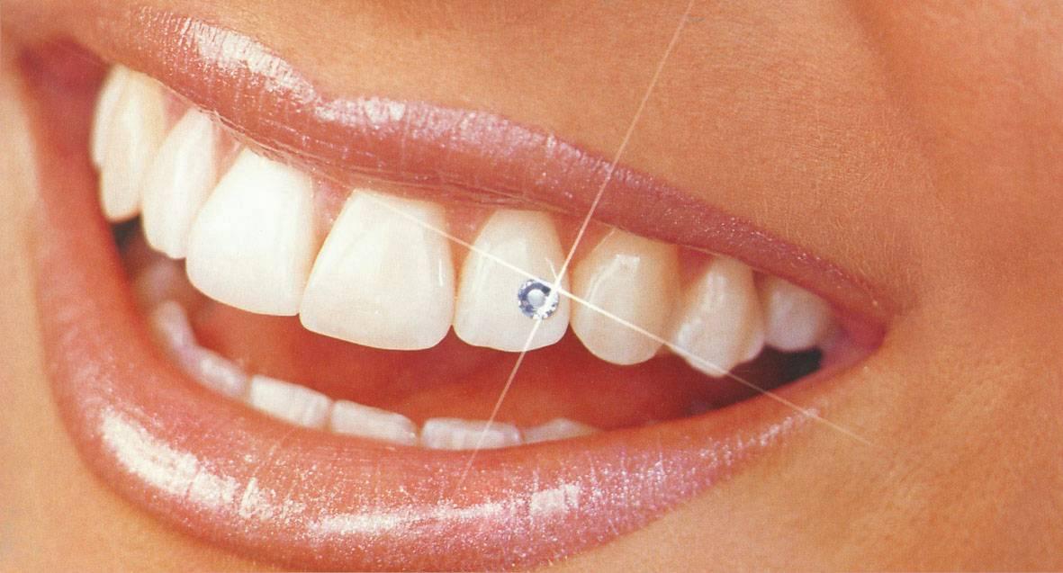 Разновидности и установка зубных украшений: скайсы, стразы, бриллианты и другие