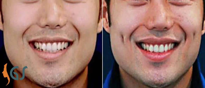 Упражнения для ямочек на щеках. как сделать ямочки на щеках быстро макияжем, упражнения, навсегда при помощи операции. упражнения для появления ямочек на щеках