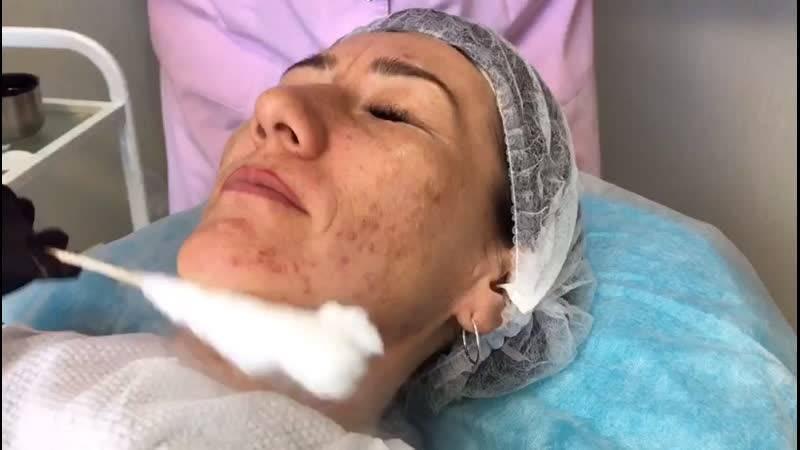 Чистка лица азотом — омолаживающее воздействие холодом