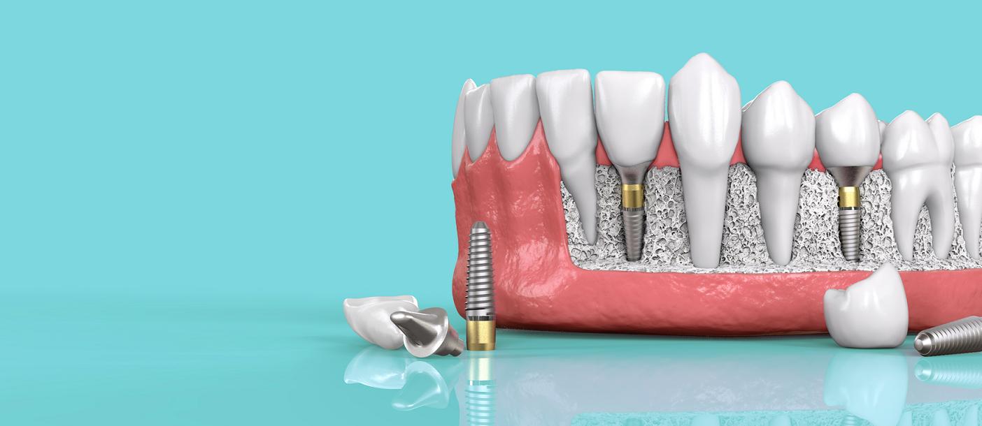Преимущества использования 3d навигации при имплантации зубов