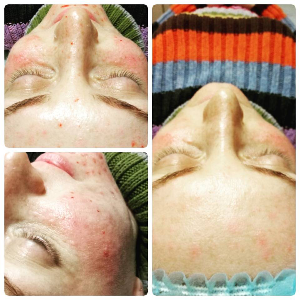 Удаление пигментных пятен на лице — салонные процедуры