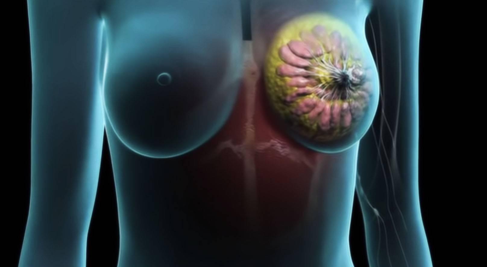 Операция при раке молочной железы и от чего зависит выбор хирургического лечения рака груди?