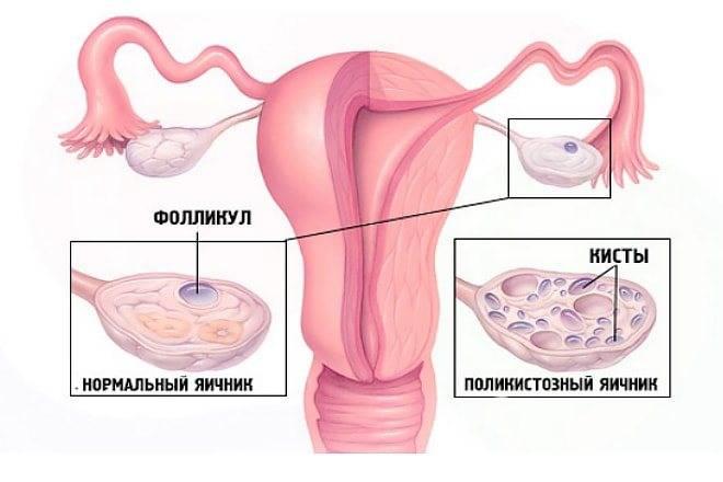 Можно ли забеременеть при поликистозе яичников?