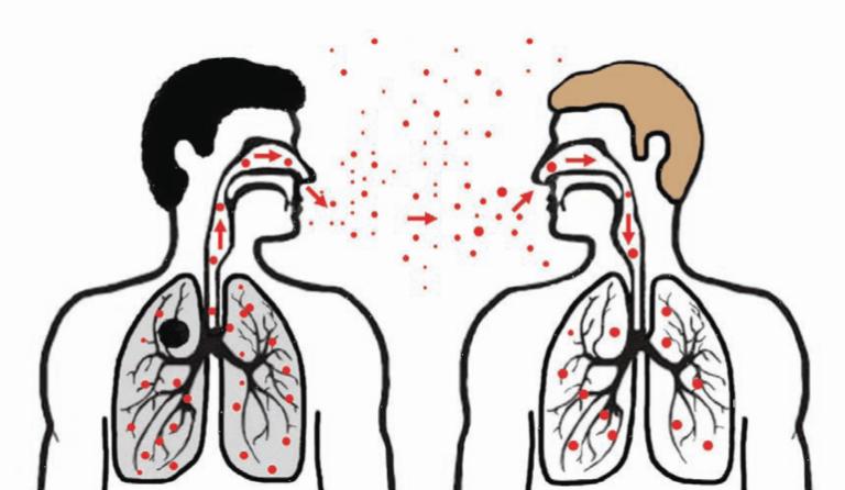 Стоматит заразный или нет: пути передачи и профилактика