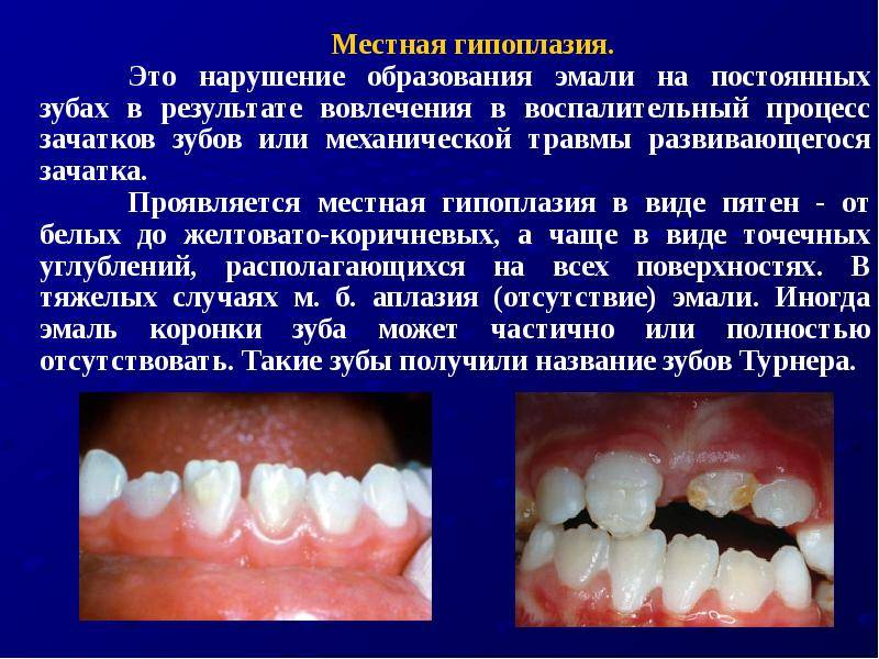 Аномалии зубов и эмали