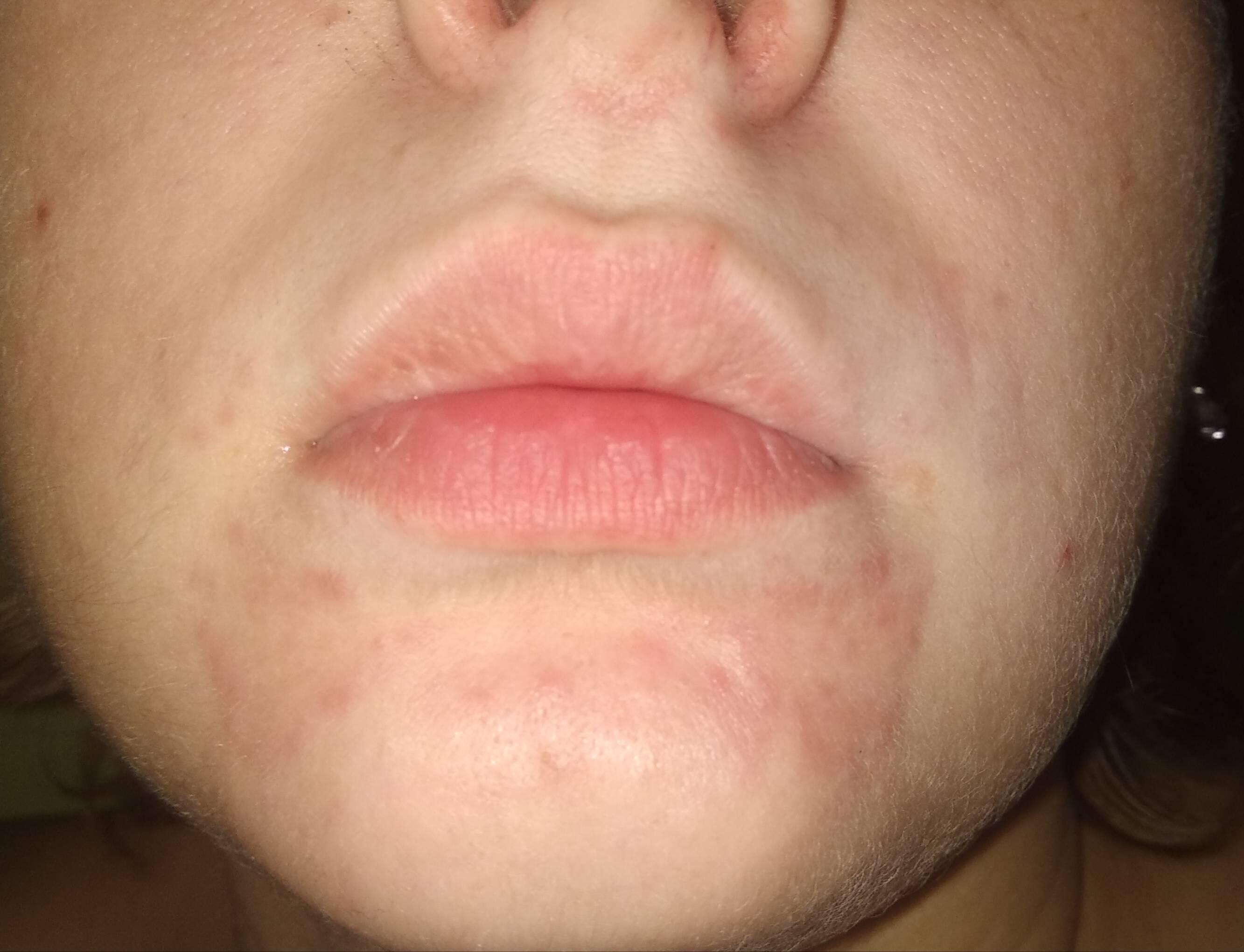 Сыпь вокруг рта у ребенка. причины 2-3, 5-6 лет, чем лечить, что советует комаровский