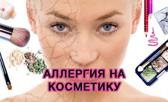 Аллергия на коже у взрослых. фото, виды, как лечить волдыри, красные пятна, зуд. мази, питание, травы