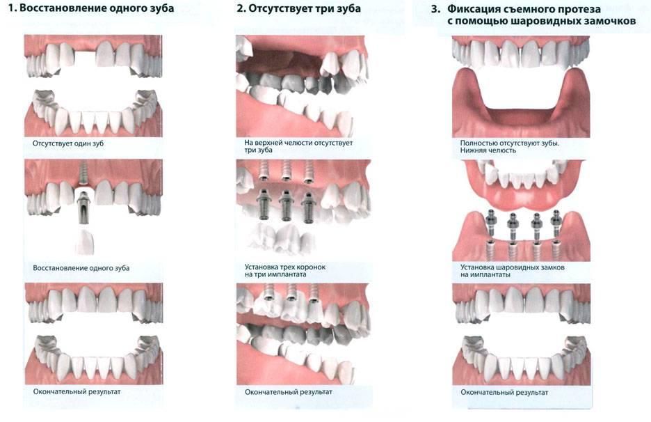 Вставные зубы