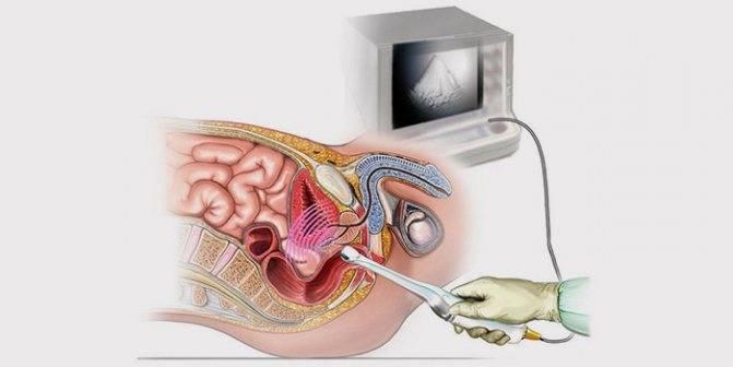 Скопление жидкости в полости матки и вокруг нее