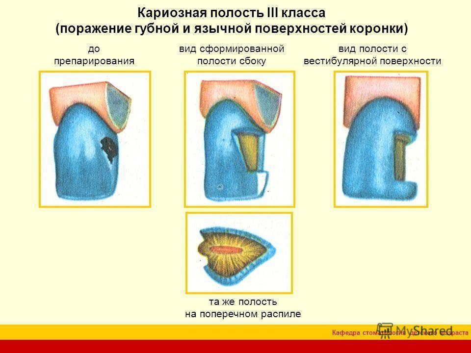 Классификация кариеса зубов по блэку в стоматологии в картинках, классификация кариозных полостей по воз