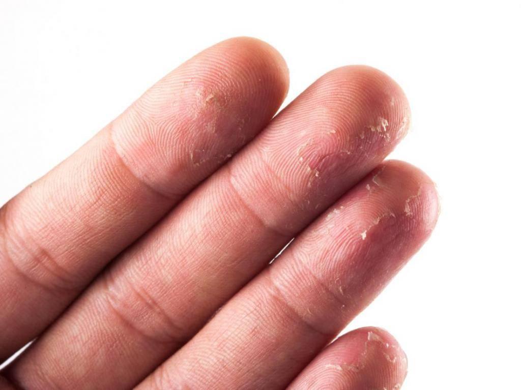 Устраняем покраснение и шелушение кожи между пальцами рук