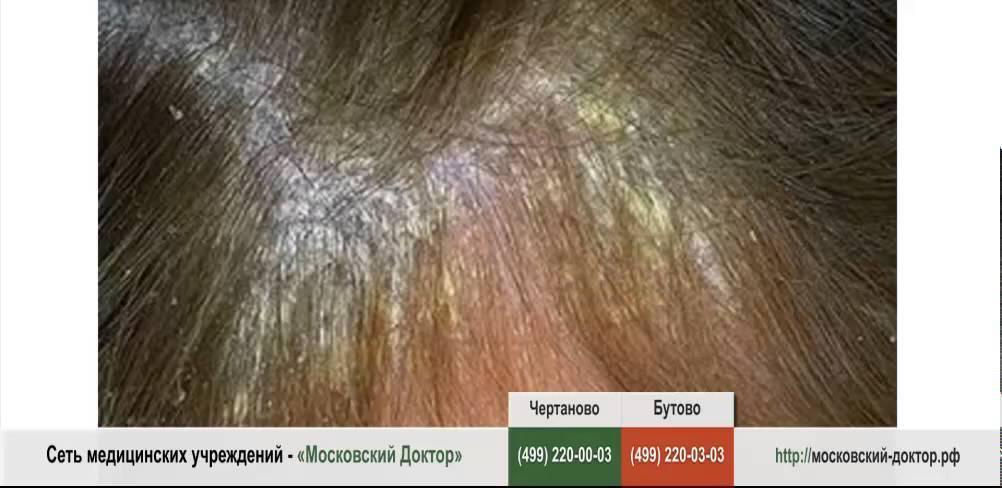 Что делать, если шелушится и чешется кожа на голове?
