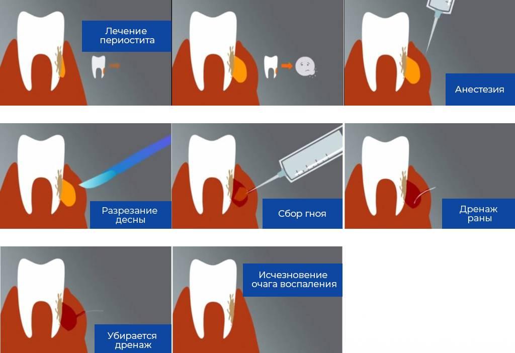 Что такое флюс зуба, какие симптомы заболевания и как его лечить?