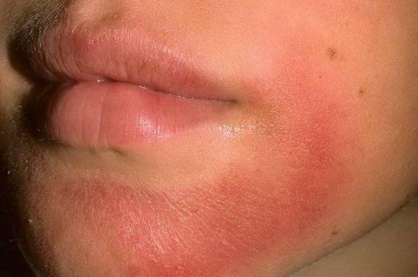 Аллергические проявления в области шеи