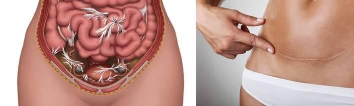 Симптомы и лечение спаек после кесарева сечения