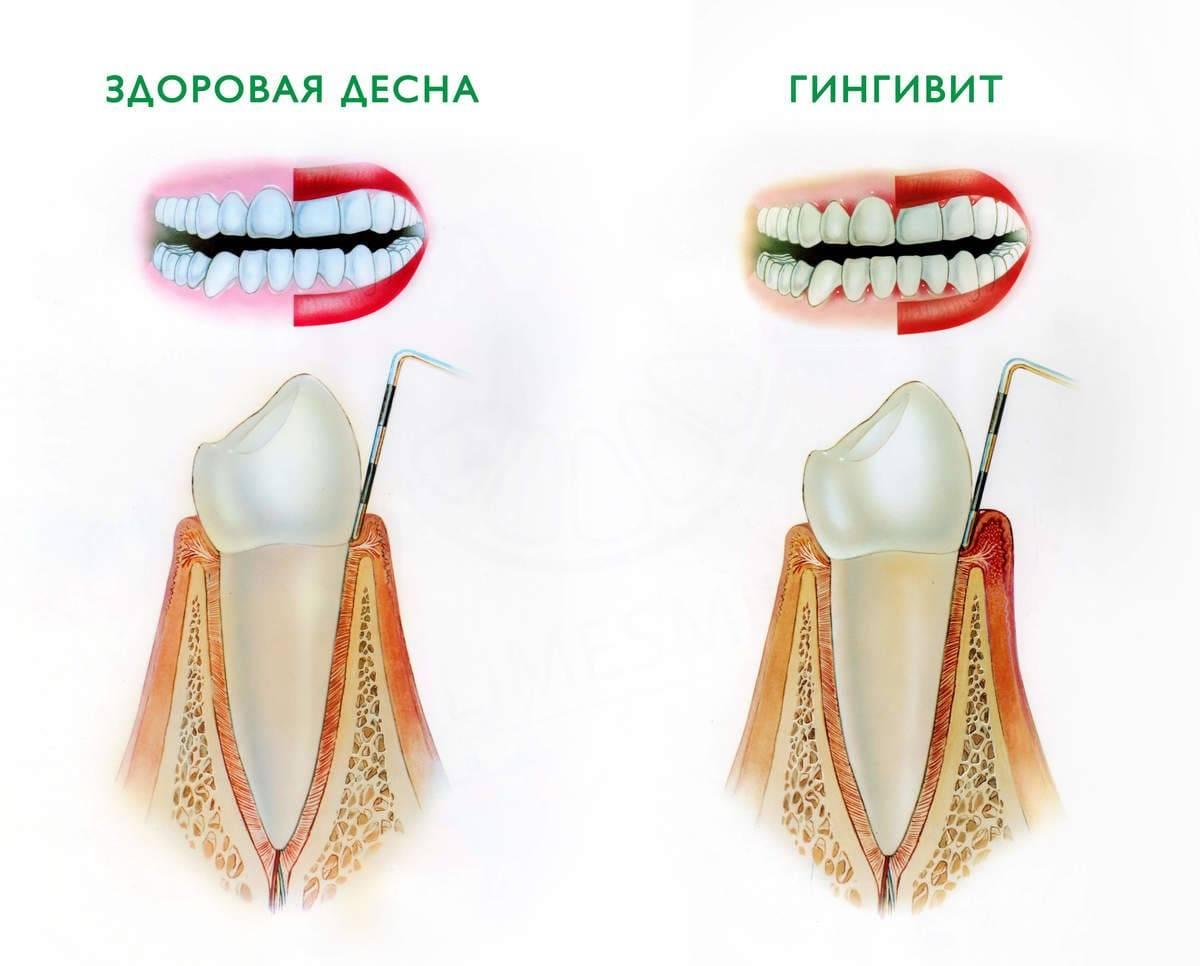 Почему десна отходит от зуба