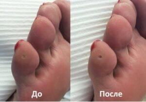 Отчего появляются мозоли на ногах и о чем они могут говорить? что бывает, если их не лечить?