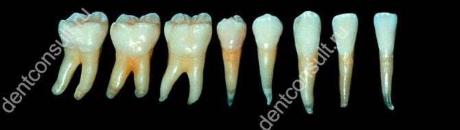 Зубные каналы. сколько зуб болит после чистки каналов? зачем необходимо проводить очистительные процедуры