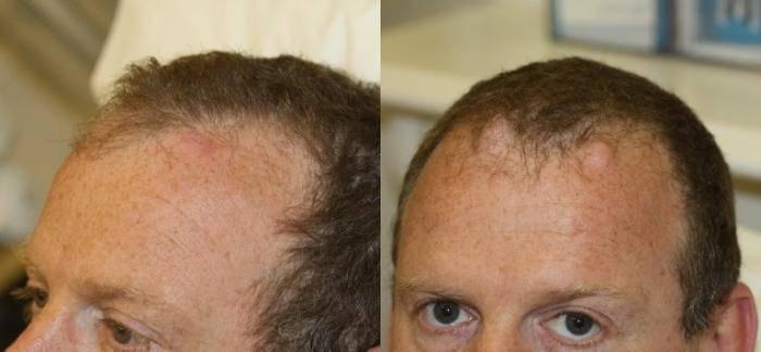 Что такое атерома на голове и нужно ли ее удалять?