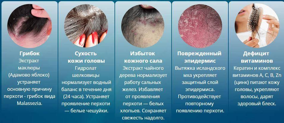 Зуд головы без перхоти: возможные причины и способы лечения
