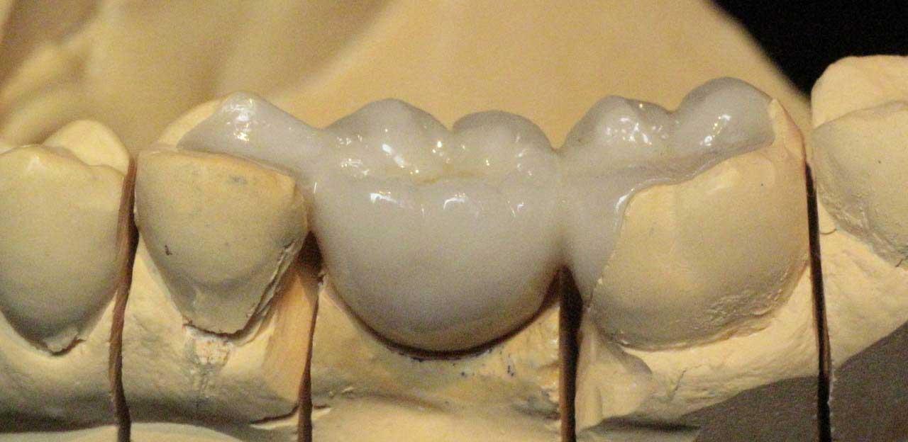Как приклеить зубную коронку в домашних условиях