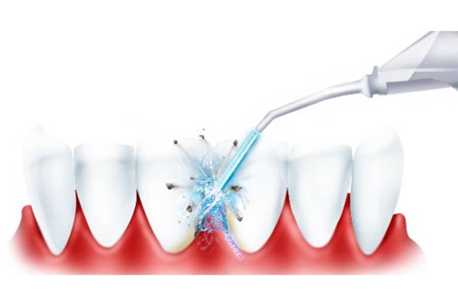 Массаж десен при прорезывании зубов