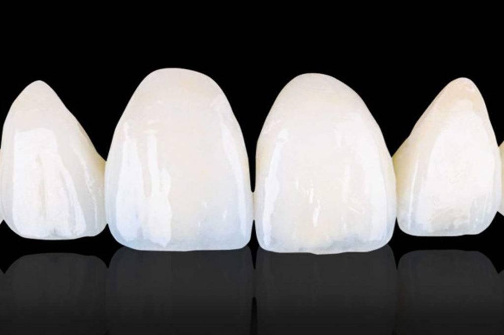 Какую коронку выбрать: керамическую или циркониевую?