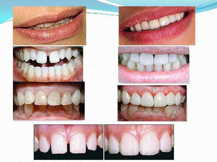 Можно ли удалить все зубы и поставить новые