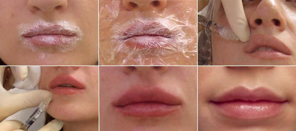 Стоит ли закачивать себе в губы биополимерный гель