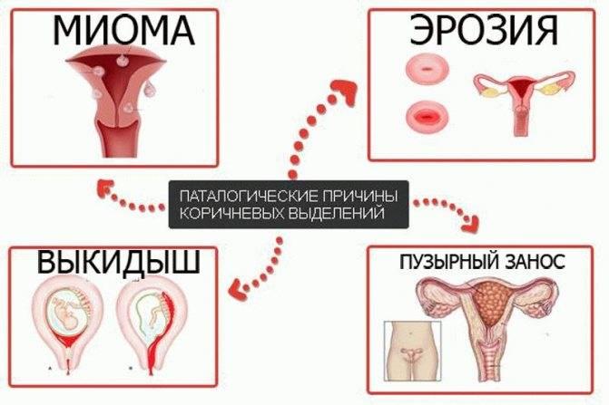 Почему после месячных идут кровяные выделения и сукровица