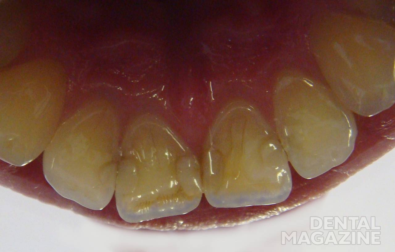 6 причин патологической стираемости зубов + лечение