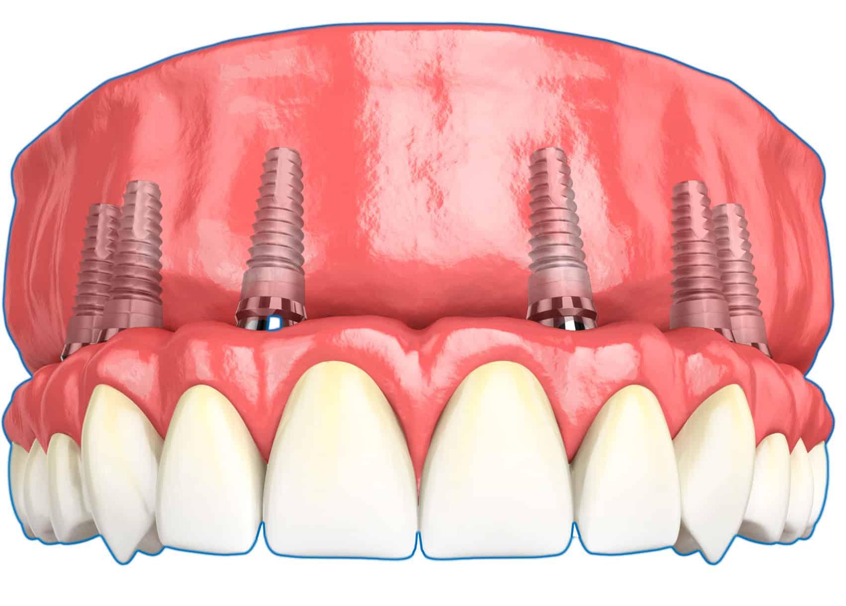 Какие бывают осложнения после зубной имплантации?
