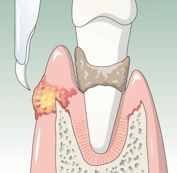 Флюс или абсцесс зуба: что это такое, методы лечения и профилактика