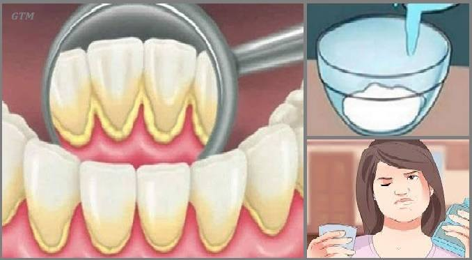 Почему появляется неприятный запах изо рта после удаления зуба