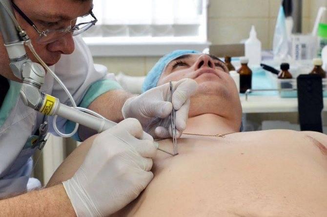 Удаление родинки хирургическим путем: 3 недостатка процедуры