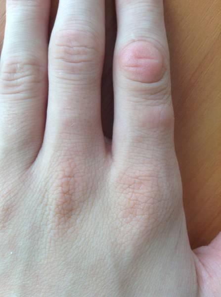 Методы быстрого избавления от мозоли на пальце руки