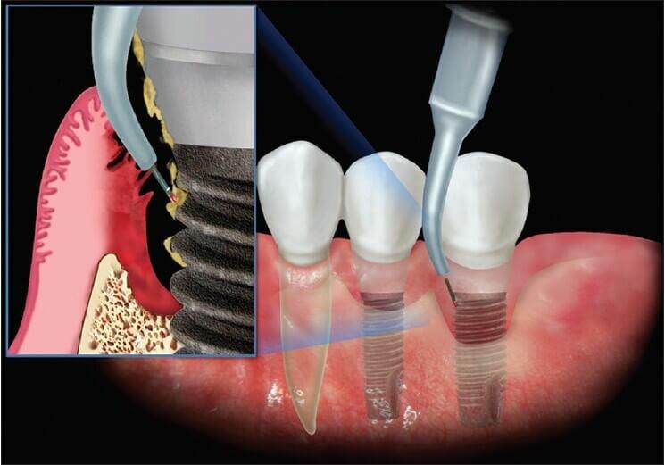 Статистика приживаемости зубных имплантов