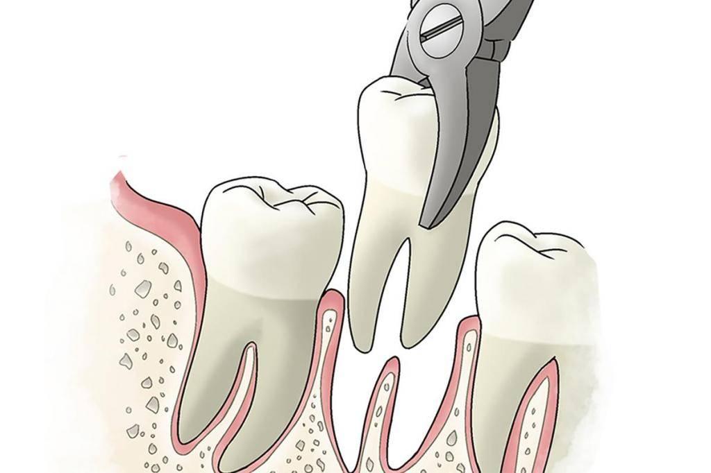 Можно ли удалять зуб если болит горло