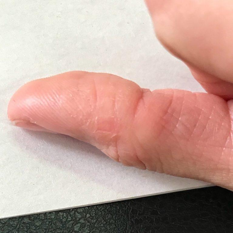 Какого витамина не хватает, если шелушится кожа на руках? кожа рук трескается и шелушится? витамины и минералы помогут от сухости кожи лопается кожа каких витаминов не хватает