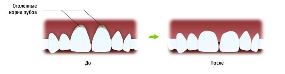 Десна отошла от зуба – почему это происходит и как лечить