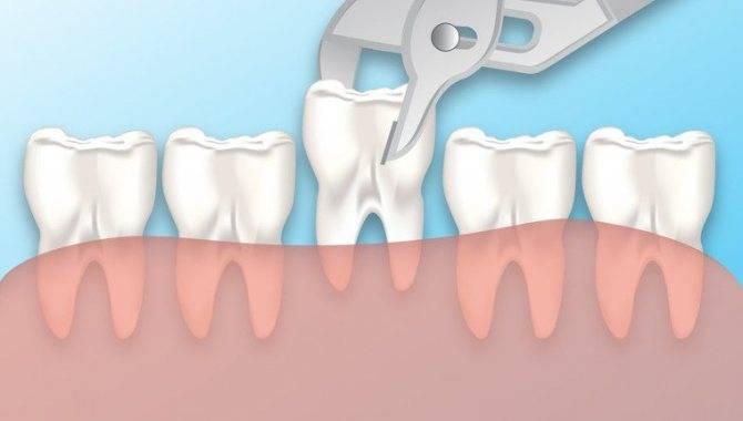 Сколько дней длится боль в лунке и челюсти после удаления зуба мудрости, как ее облегчить?