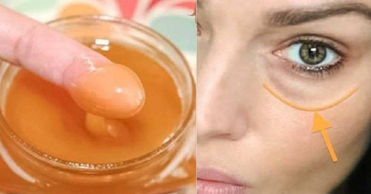 Как избавиться от темных кругов под глазами: аптечные, народные средства, косметика, косметология
