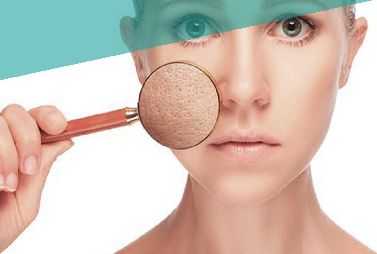 Методы ухода за кожей лица с расширенными порами