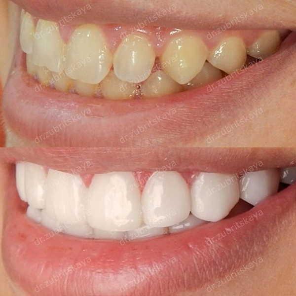 Приметы что делать с выпавшим зубом у взрослого