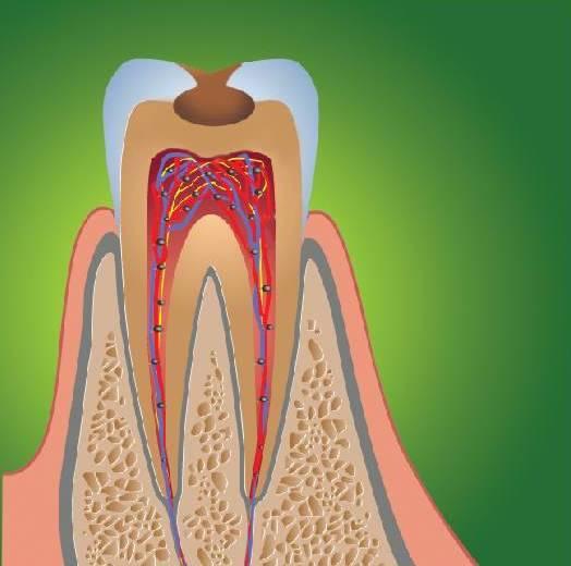 Это нужно знать: почему болит зуб после лечения глубокого кариеса?