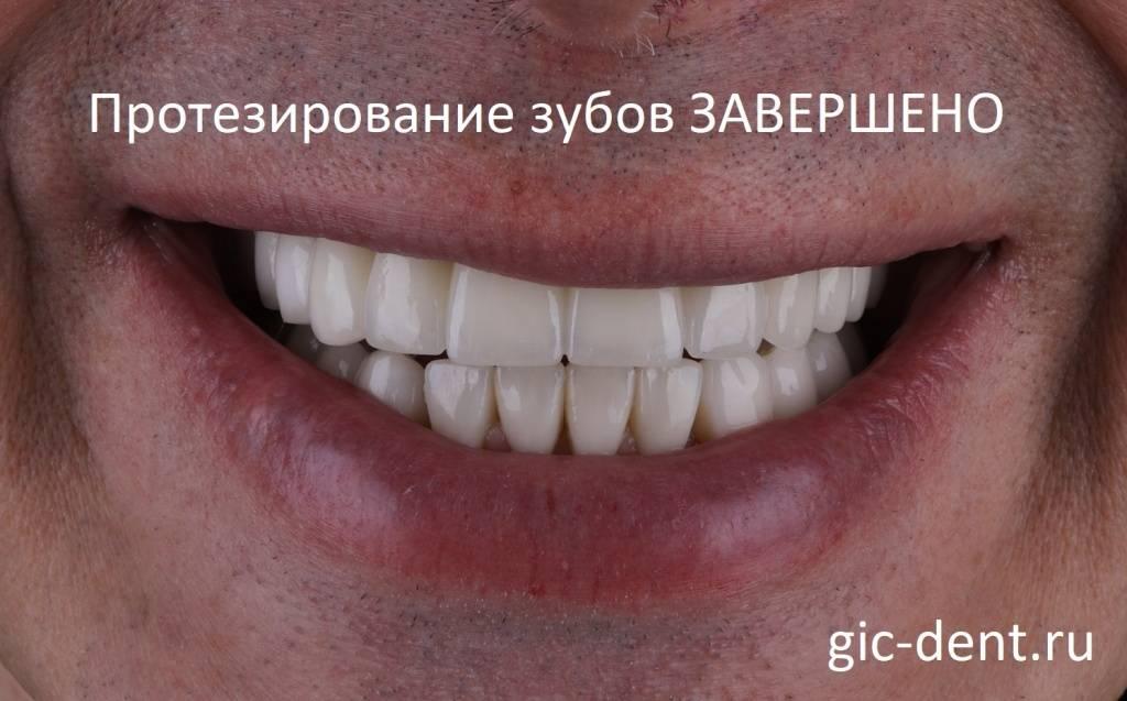 Имплантация зубов при диабете — за и против